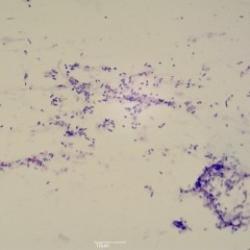 Cocci (bacteria)