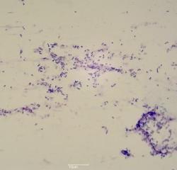 Cocces (bactéries)