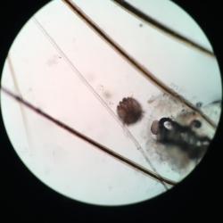 Scabies ( Sarcoptes scabiei)