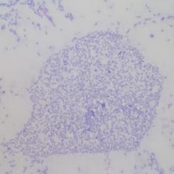 Bâtonnets (bactéries)